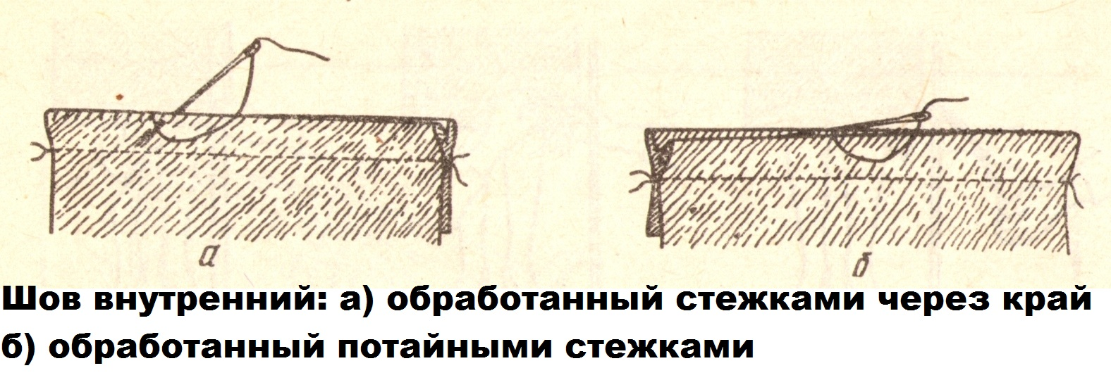 Шов внутренний (5)